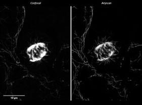 固定肿瘤细胞